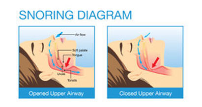 Snoring Diagram. ledhealthandfitness
